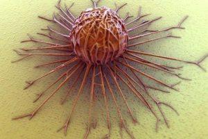 Trattamento del melanoma