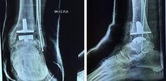 Sempre più evoluta in Italia la chirurgia ortopedica robotica