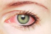 Blefadine, salviette per la salute dell'occhio