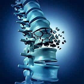 La fragilità ossea si può curare