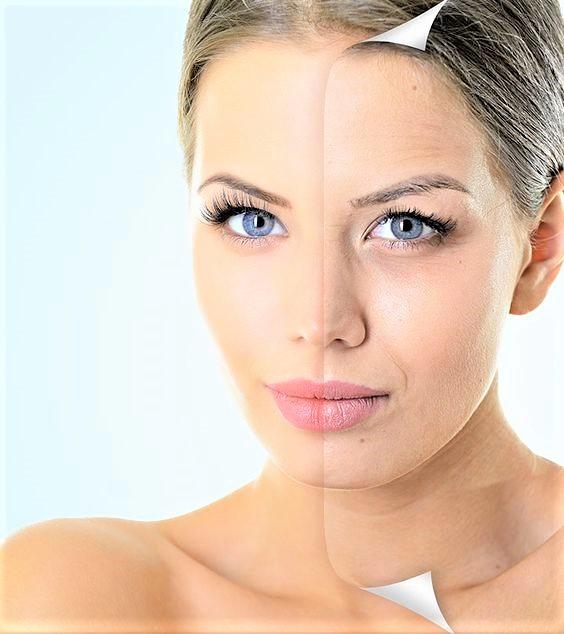 Sant'Anna Beauty Hyaluronic Acid, il drink di bellezza che migliora la pelle