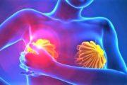 Tumore al seno metastatico