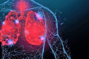 I pazienti con BPCO: l'importanza di proteggere i polmoni dallo stress ossidativo