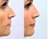 "Medicina Estetica, i cinque trend del 2021: filler per naso, mandibola e labbra, botulino e ""foxy eyes"""
